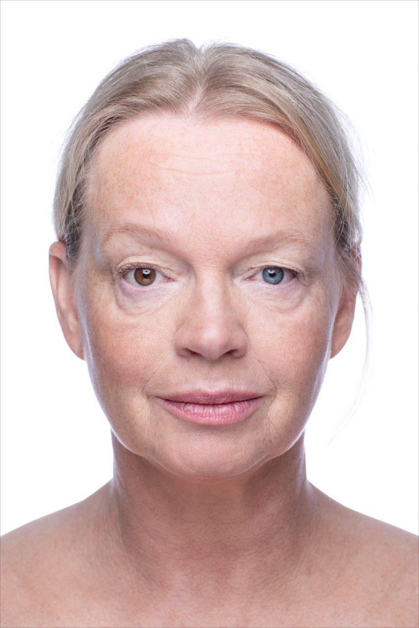 Karin Swerink Heterochromie